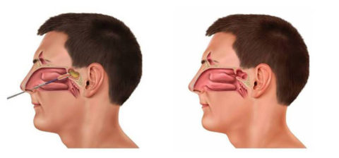 Sinus and breathing relief diagram profile view